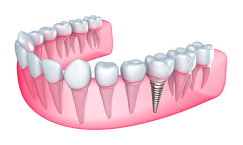 Dental implant diagram of implant in mouth.
